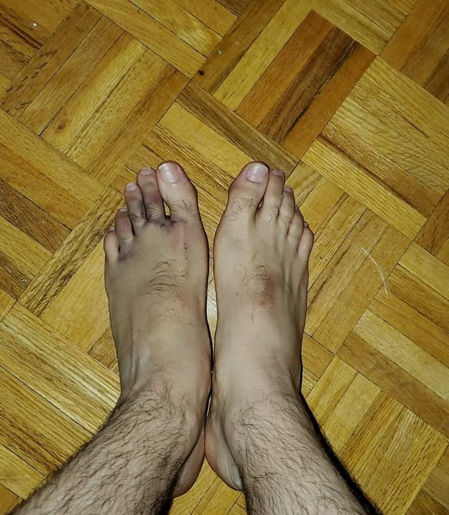 Bruised feet from Kickboxing